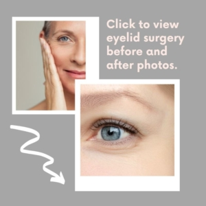 click to see blepharoplasty before and after photos